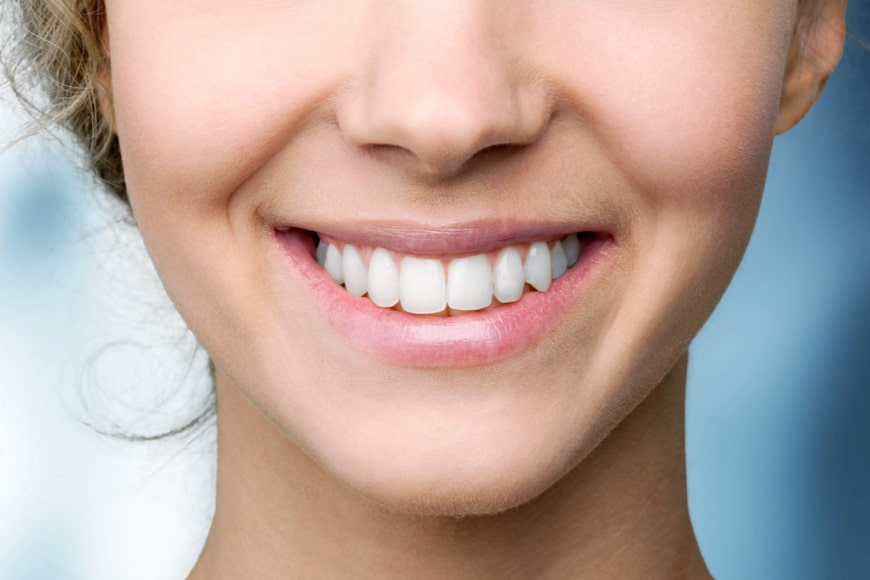 Tratamiento de blanqueamiento dental barato tipos
