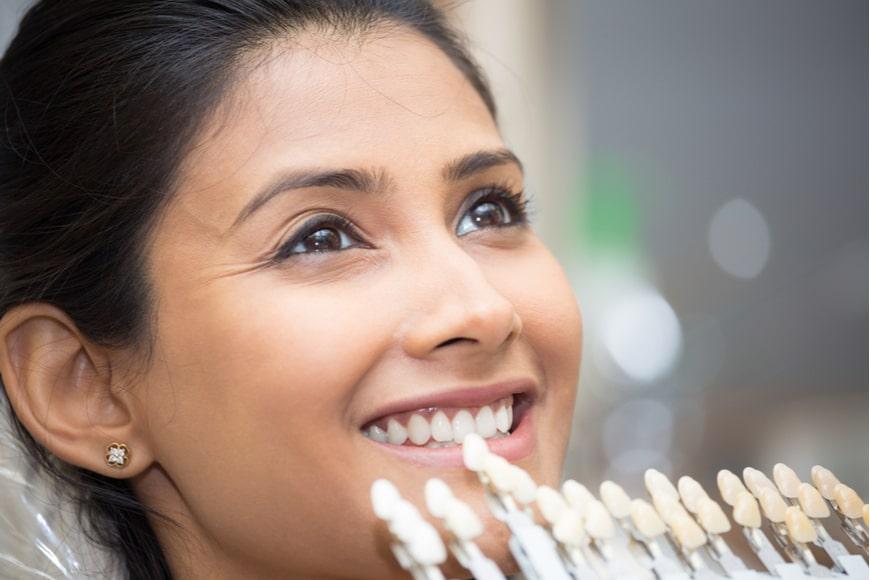 Qué son las carillas dentales y su precio